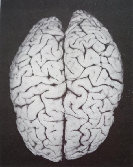 Nelze uniknout podobností a spojitostí, kterou spírala vyobrazující labyrint má s podobou lidského mozku – sídlu rozumu.  Repro archiv autora