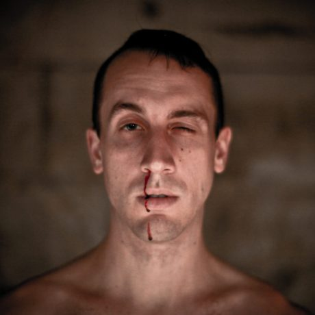Vstane, teče mu znosu krev. FOTO archiv Andrewa Schneidera